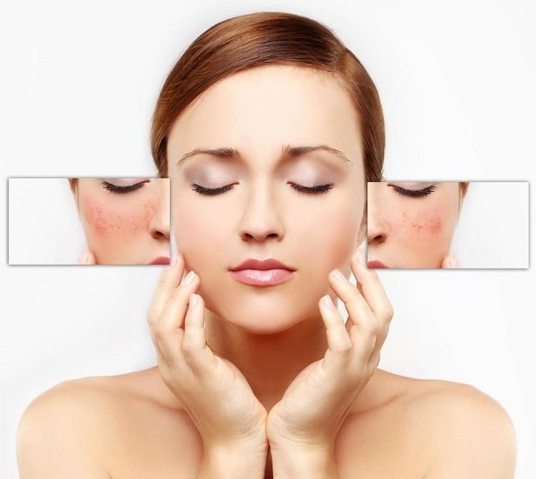 Phân biệt các loại da và cách chăm sóc phù hợp