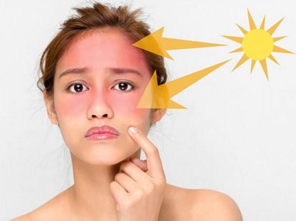 Da mặt bị cháy nắng thì phải làm sao? Cách chữa da bị cháy nắng hiệu quả