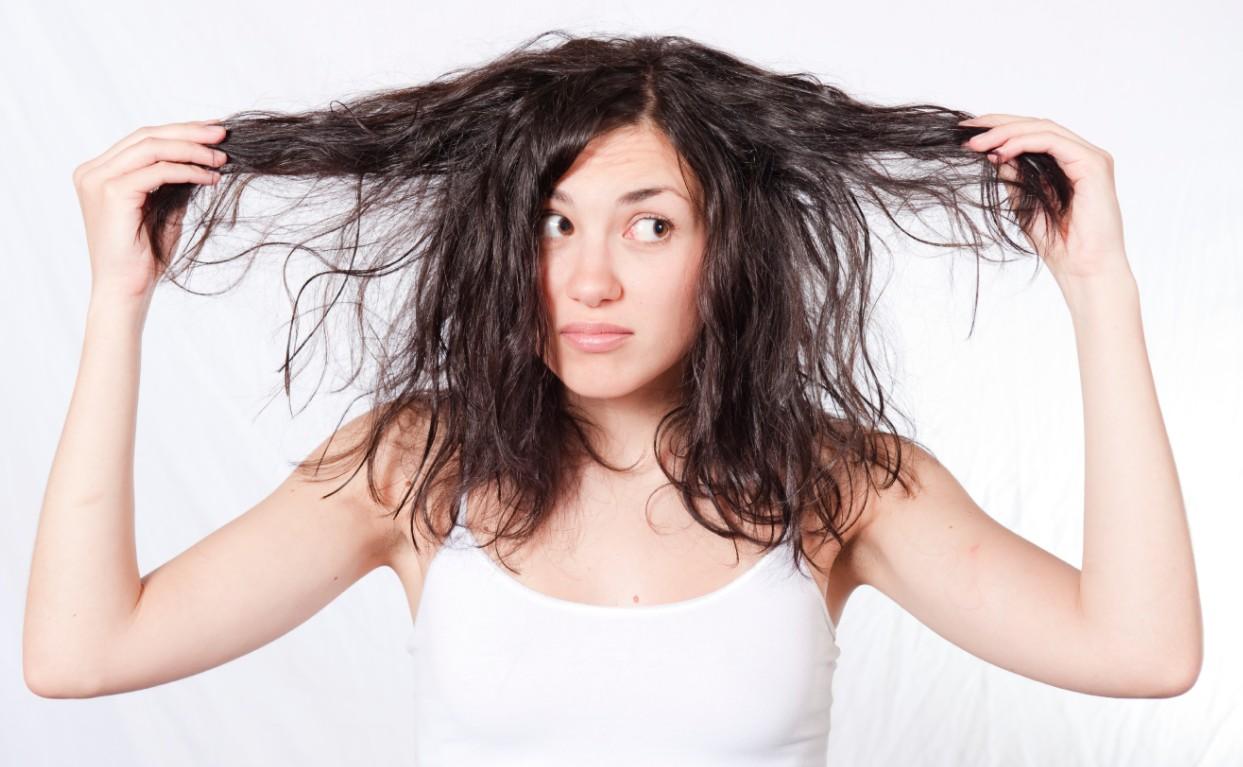 Rụng tóc do di truyền