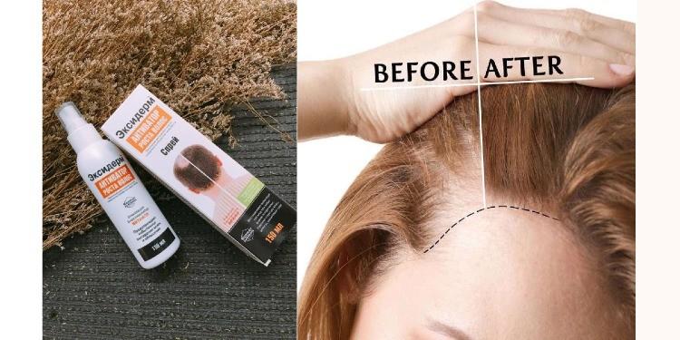 Rụng tóc gây ra những mảng hói trên da đầu khiến nhiều người mất tự tin và ngại ngần trong giao tiếp