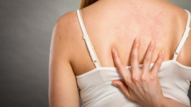phòng tránh viêm nang lông