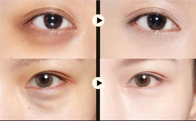 Mặt nạ mắt Images review