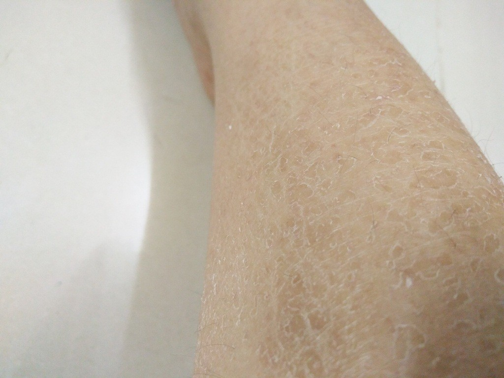 da bị khô bong tróc, da mặt bị khô bong tróc và đỏ, da mặt bị bong tróc phải làm sao, da mặt bị khô bong tróc và ngứa, da mặt bị nẻ bong tróc, da mặt bị khô tróc da phải làm sao, da mặt bị khô tróc da, da khô bong tróc ở mặt, da mặt bị khô và lột da, cách khắc phục da mặt khô bong tróc